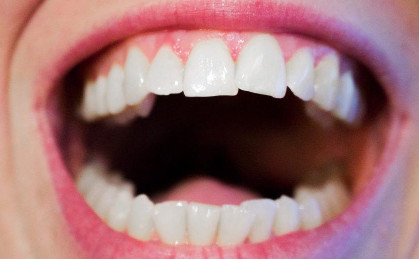 Az implantátum a legkorszerűbb fogpótlási lehetőség!
